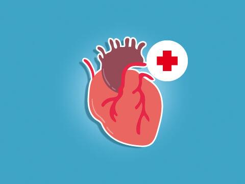 18 OAP du plongeur et autres problèmes cardio-vasculaires