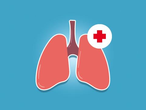 e-learning-plongee-MF2-surpression-pulmonaire