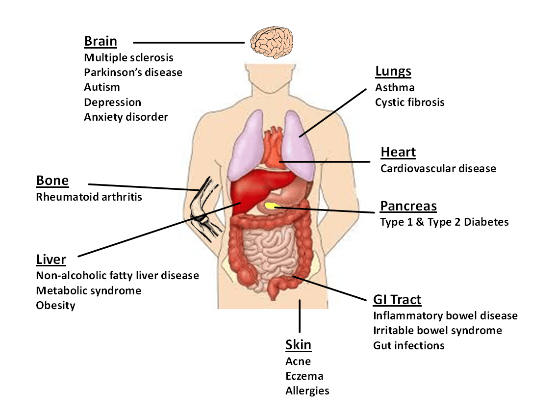 ibd remains one of the most extensively studied human conditions associated with the gut microbiota it was around this time when i made one of the most  [ 1050 x 787 Pixel ]
