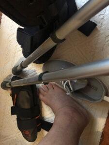 il-piede-rotto-di-Donatella-due-mesi-dopo-l'intervento-stampelle-e-tutori