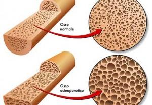 Osso sano e osteoporosi, differenze