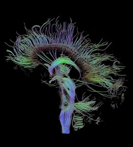 Ricostruzione trattografica delle connessioni neurali ottenuta con la tecnica di imaging a spettro di diffusione