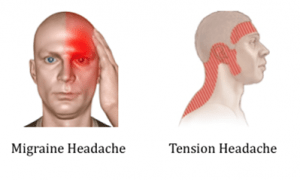 Headache and migraine treatment with Acupuncture in Egypt