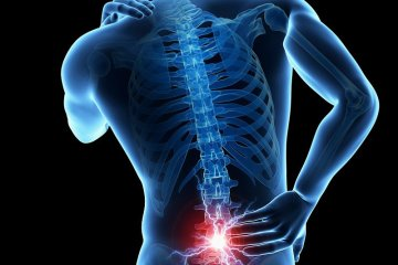 Physiotherapy clinic in Cairo for low Back pain treatment