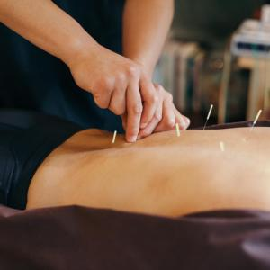 Best Acupuncture clinic in New Cairo