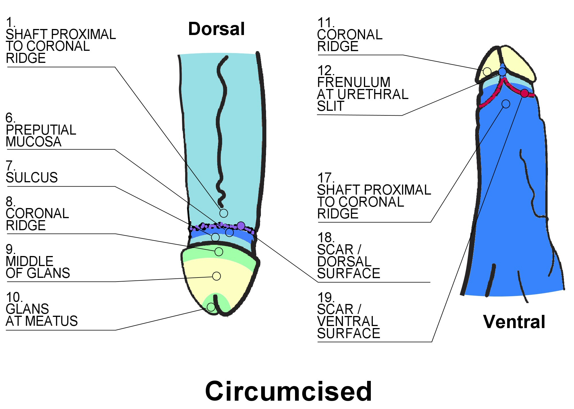 The Foreskin Circumcision and Sexuality