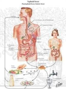 ciri-ciri-penyakit-tifus