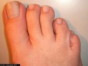 toenails turning dark doctor