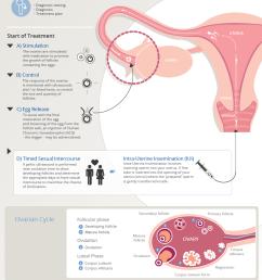 ovulation induction treatment procedure [ 898 x 1270 Pixel ]