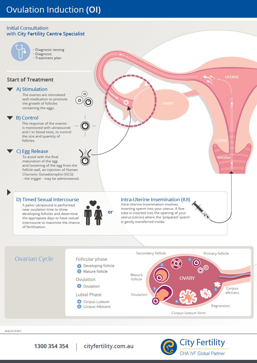medium resolution of ovulation induction treatment procedure