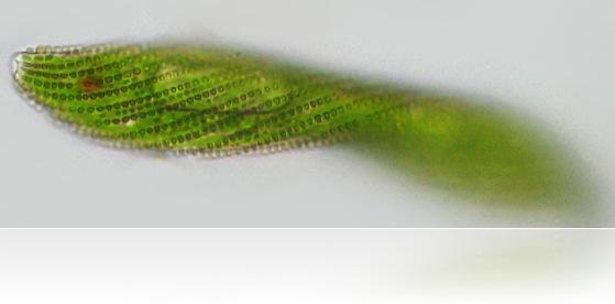 Euglena Spirogyra