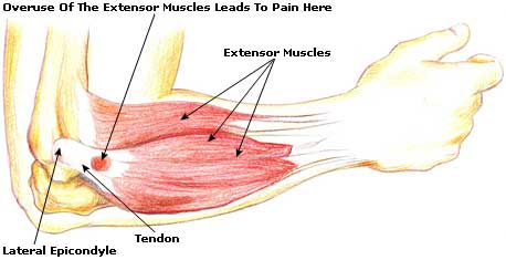 Athletic Injuries 101: Tennis Elbow - Chatham-Kent Sports ...