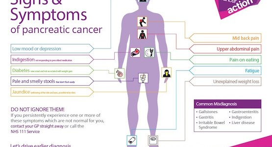 Pancreatic Cancer, Diagnosis and Treatment