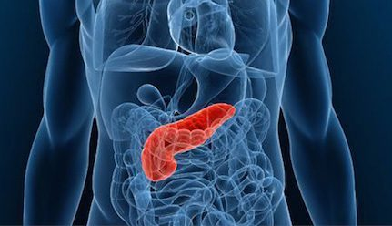 Pancreatic Cancer:  different locations have different symptoms
