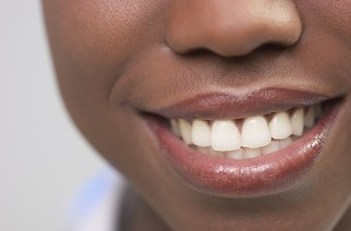 Teeth Staining: Causes, Prevention And How To Whiten them