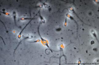 Dutch Fertility Doctor Used Own Sperm To Father At Least 49 Children
