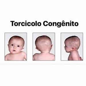 torcicolo-congenito
