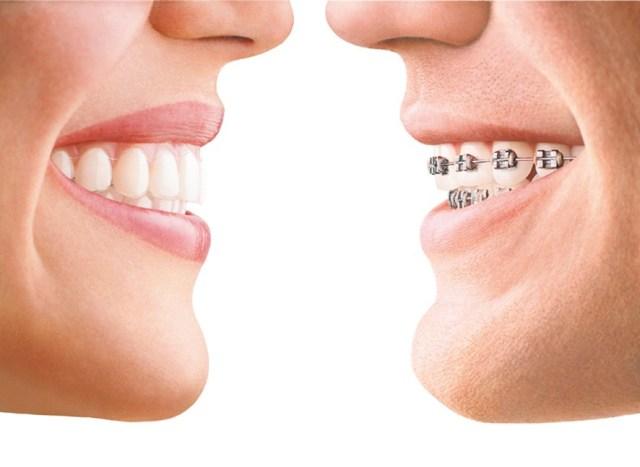braces-advantages