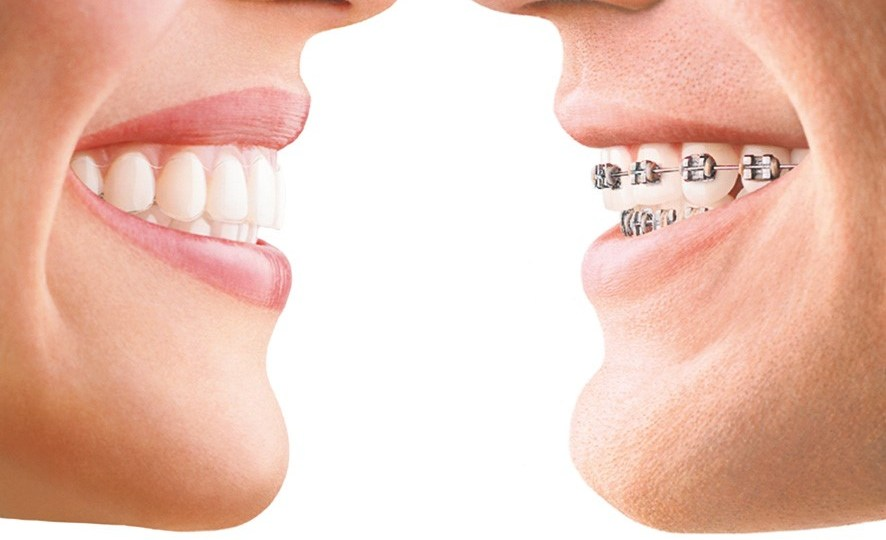 braces-advantages