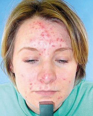 cause Acne adult