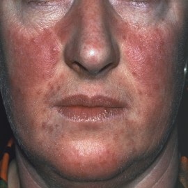 Comedonal acne in adult women