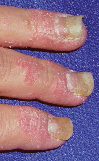 Nail Pitting And Onycholysis