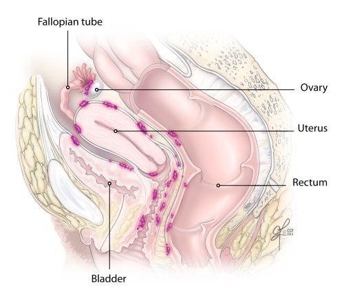 small resolution of ovarian cancer spreads along the peritoneal surfaces of the abdomen and pelvis