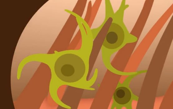Mikroben