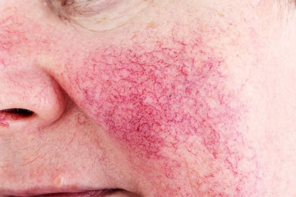 rosacea_redness_face
