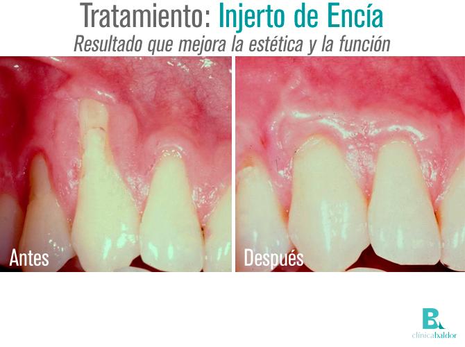 bal-antesydespuesinjertoencia-1611-r1
