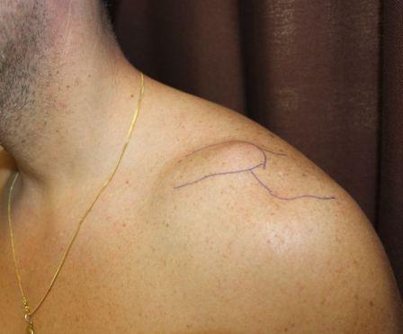 Luxación Acromio-Clavicular hombro. Expertos en esta lesión
