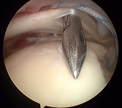 Imagen cámara interna en artroscopia