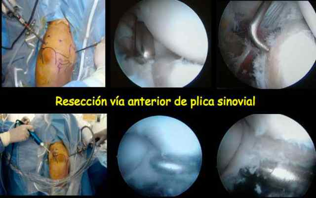 Bloqueo Codo plica sinovial Dr Bernáldez (www.clinicabernaldez.com)