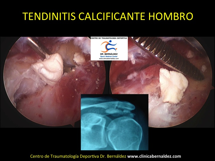 TENDINITIS CALCIFICANTE GIGANTE DR BERNALDEZ