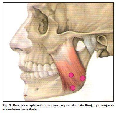 Tratamiento del bruxismo y de la hipertrofia de maseteros en Murcia