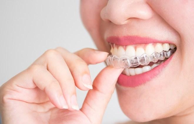 ortodoncia invisible jerez