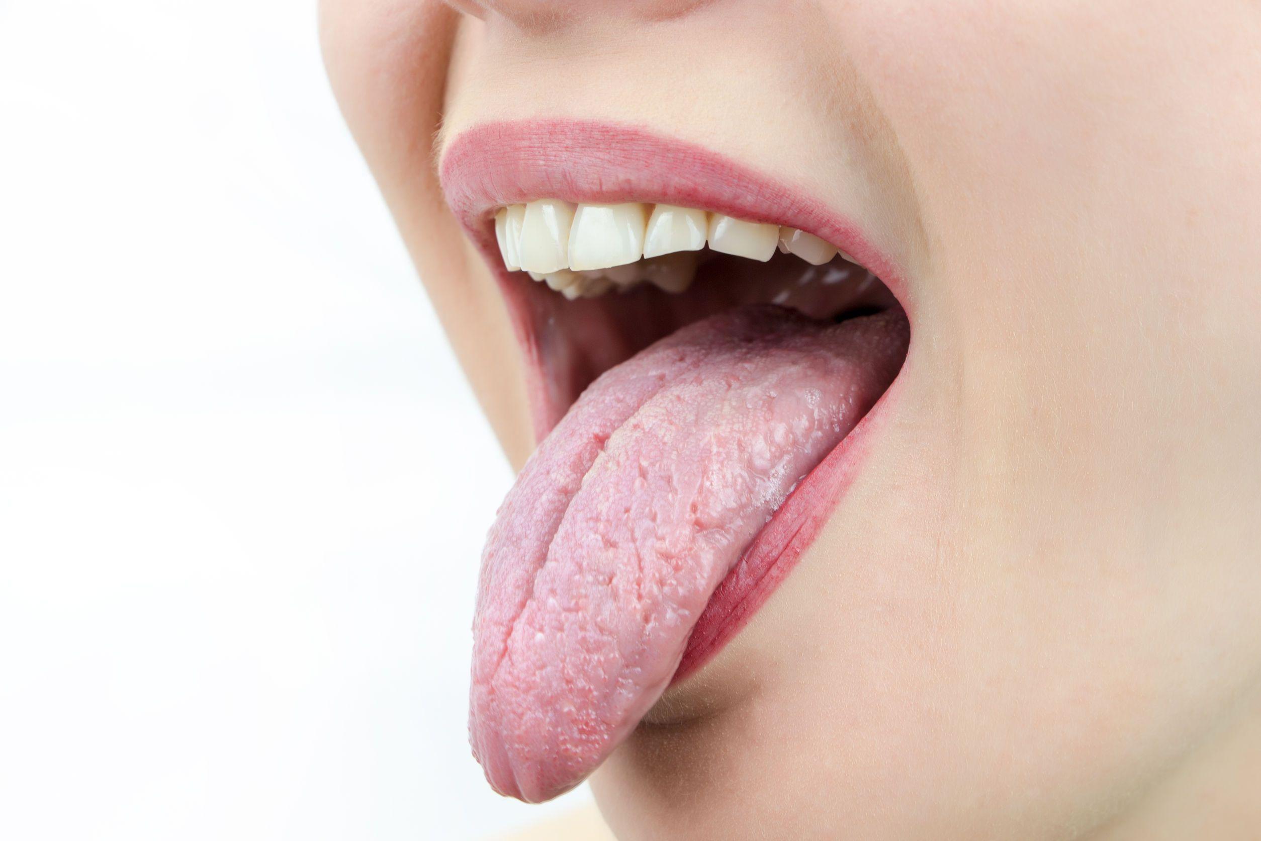 boca seca por la noche causas