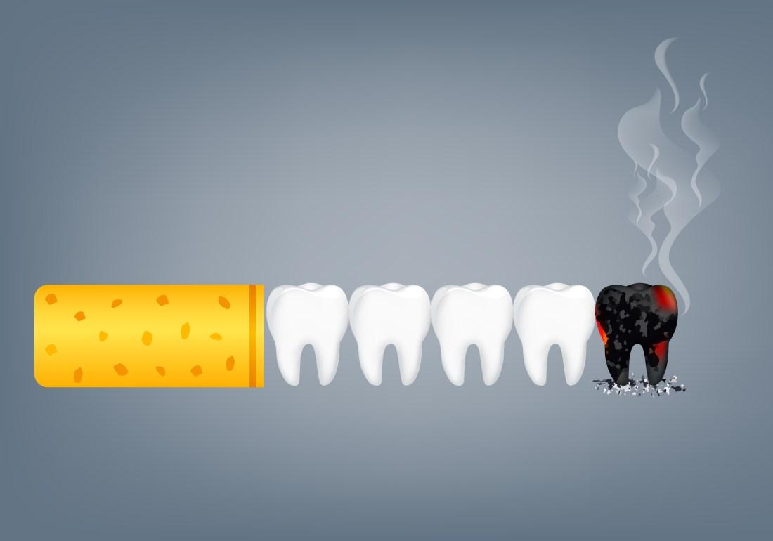 Fumar afecta a los implantes dentales