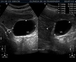Ultrasonido Renal Vesical Clínica de Ultrasonido en ...