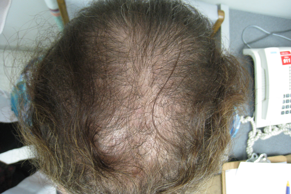Diagram Of A Hospital Thinning Hair At The Frontal Scalp And Crown Clinical