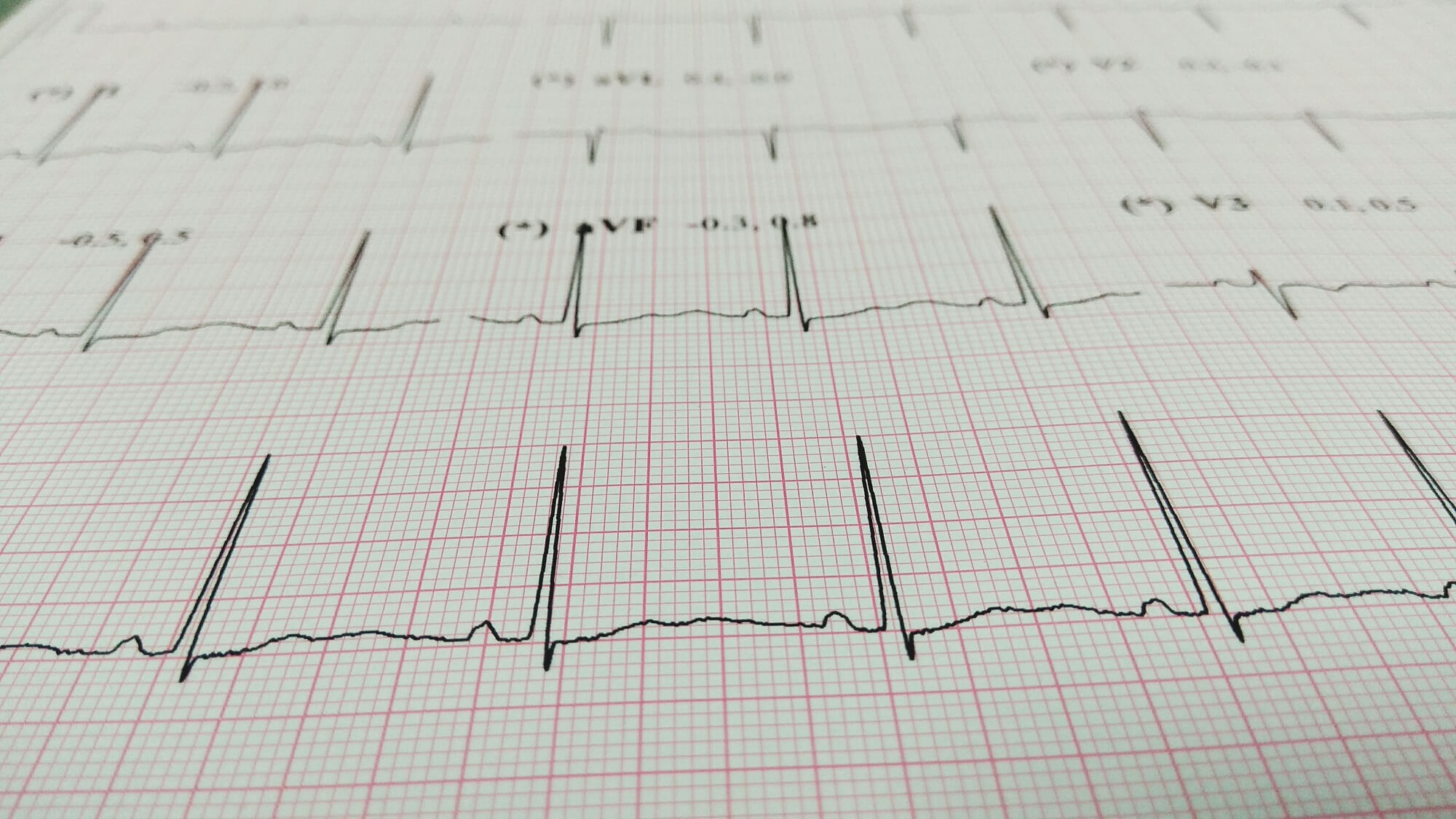 Artificial Intelligence Can Use Routine Ecgs To Identify