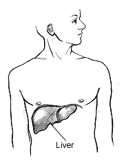 Is there a Non-Invasive Method to Diagnose Cirrhosis