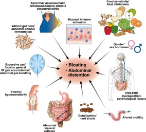 Confused About Abdominal Bloating? – No More!   Clinical
