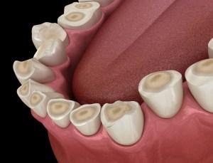 Bruxism dental attrition