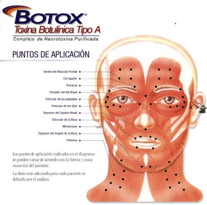 "The image ""https://i0.wp.com/www.clinicalicancabur.cl/img/botox1_680.jpg"" cannot be displayed, because it contains errors."