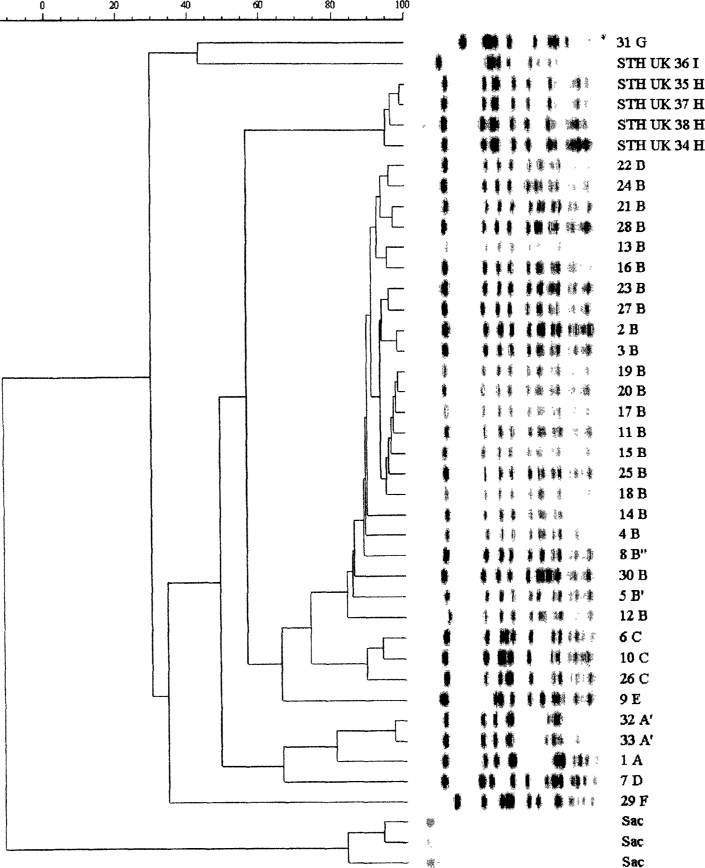 Failure of bacteriophage typing to detect an inter