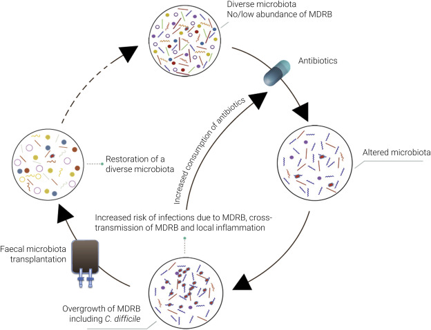 What's new in restoring the gut microbiota in ICU patients
