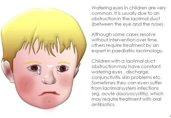 Watering eyes in children  Clinica London