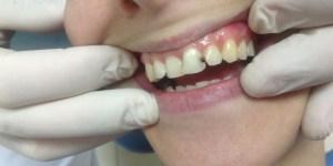 estética dental de calidad en zaragoza