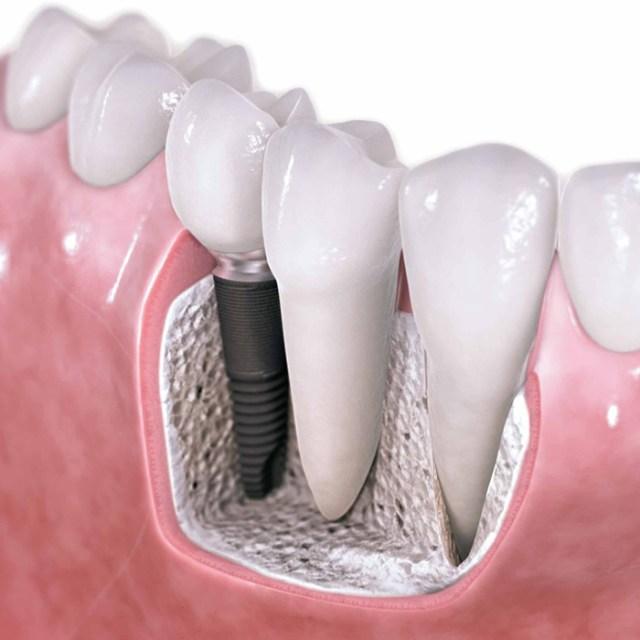 Próteses fixadas sobre um implante dentário